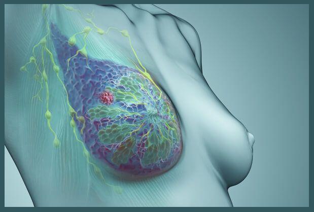 Раковая опухоль в груди