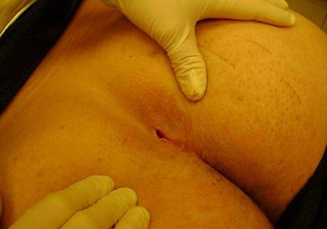 Рана после парапроктита