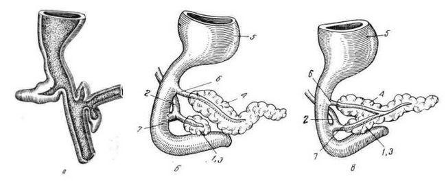 Развитие поджелудочной железы