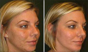 Описание действия салицилового пилинга на кожу лица