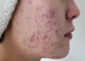 Чем и как убрать следы от прыщей на лице при помощи подручных средств и косметических процедур