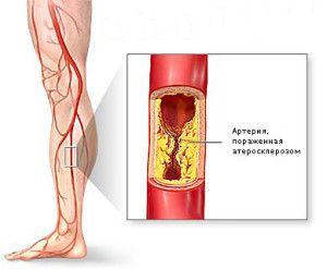 Симптомы и лечение облитерирующего эндартериита нижних конечностей