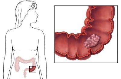 Симптомы полипов в прямой кишке