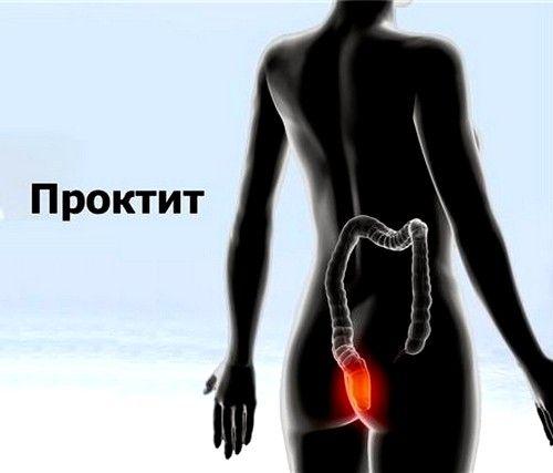 Симптомы проктита прямой кишки