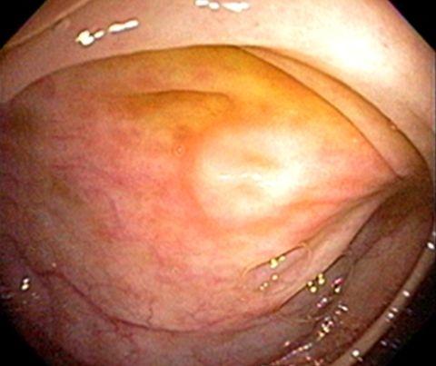 Симптомы псевдомембранозного энтероколита