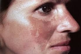 Синдром пейтца-егерса-турена