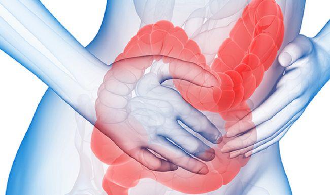 Синдром раздраженного кишечника при беременности