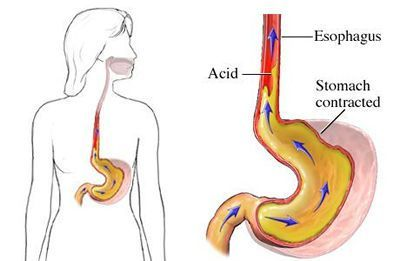 Синдром рефлюкс-эзофагита