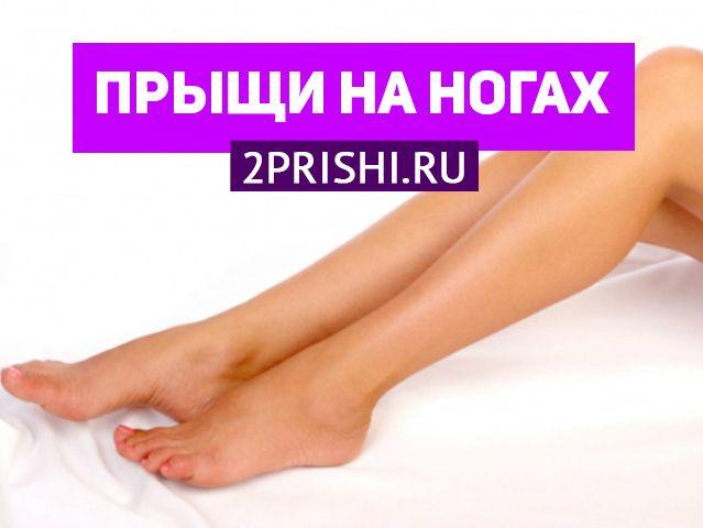 Способы лечения красных прыщиков на ногах у женщин и причины их появления