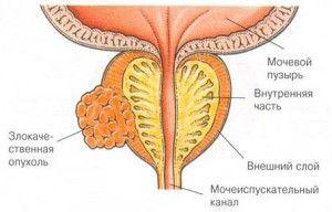 Стадии рака предстательной железы, методы диагностики и лечения