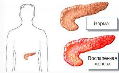 Статьи о панкреатите