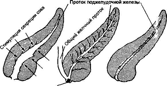 Стимуляція підшлункової залози, як стимулювати активність ферментів?