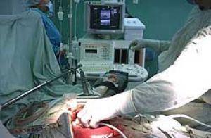 Видалення пухлини - операція при раку підшлункової залози