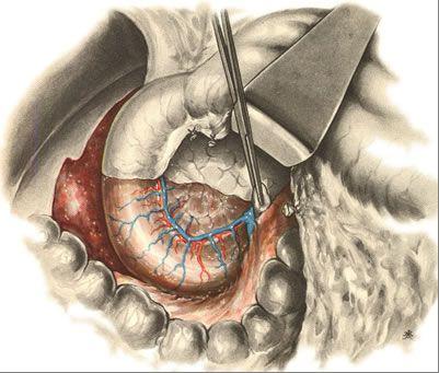 Удаление поджелудочной железы