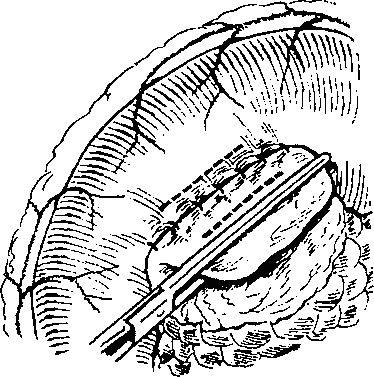 Удаление части поджелудочной железы