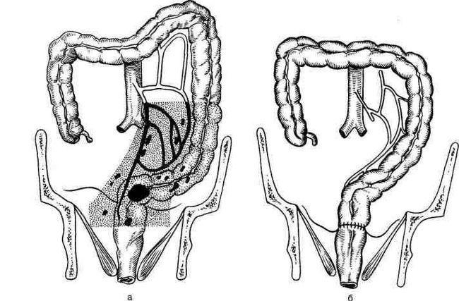 Полипы в прямой кишке - операция