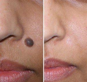 Удаление родинок с помощью лазера на лице, фото до и после