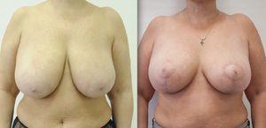 Уменьшение грудных желез: отзывы, фото до и после