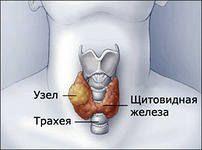 Узлы щитовидной железы. Опасно ли?