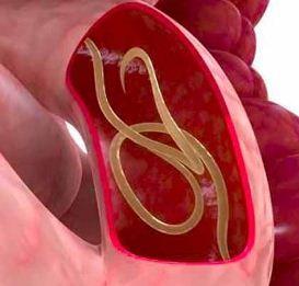 Глисты в органах пищеварения