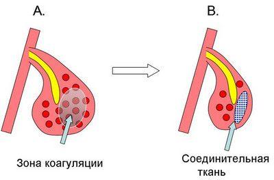 Вазомоторный ринит: народные средства и дыхательные упражнения