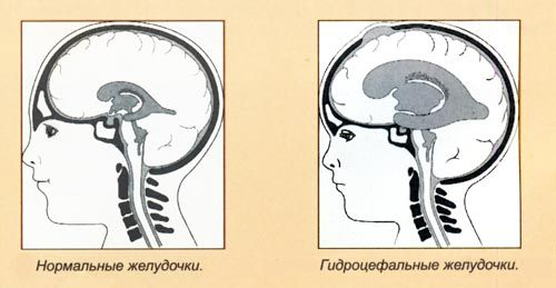 Виды гидроцефалии, причины водянки головного мозга у взрослых и детей