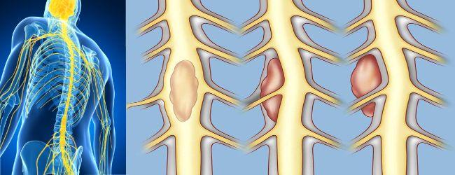 Виды опухолей спинного мозга, их симптомы и диагностика