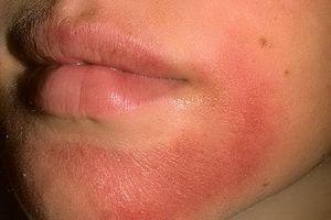 Виды пищевой аллергии у взрослых, её симптомы и причины