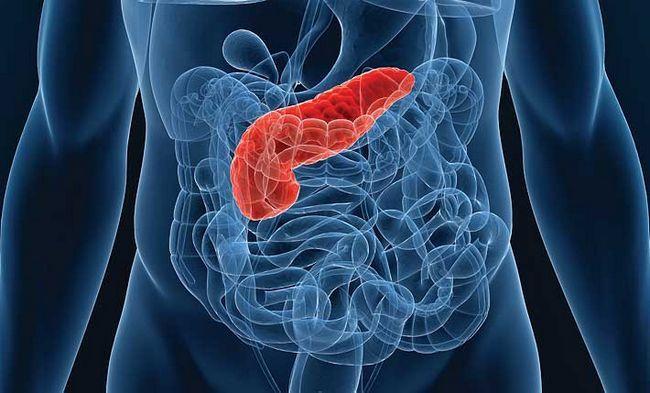 Воспаление поджелудочной железы (панкреатит) - симптомы и признаки, боли, температура