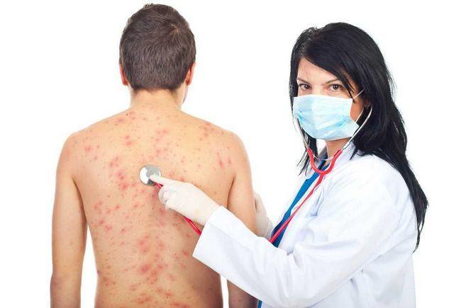 Врач, лечащий глисты (гельминты), к кому обращаться для лечения гельминтозов у взрослого человека и ребенка?
