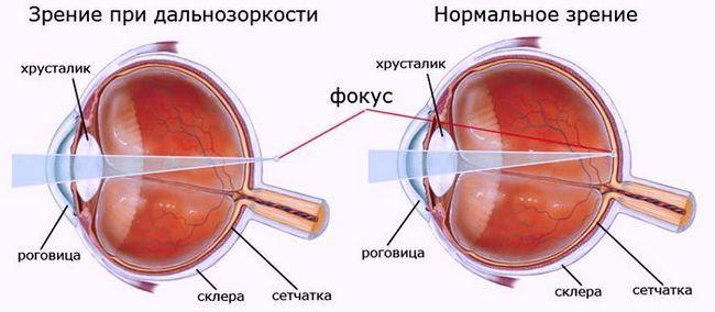 Все возможные причины дальнозоркости – диагностика и лечение гиперметропии