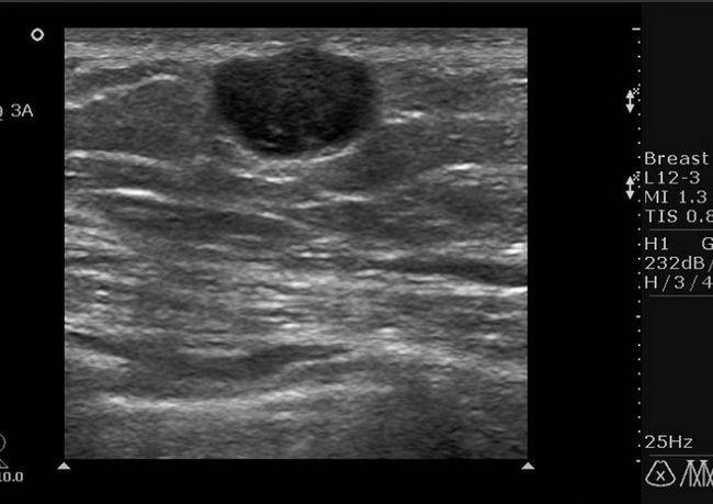 Выявление гипоэхогенного образования в груди