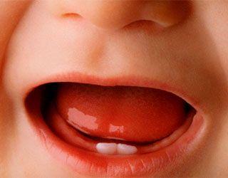 Понос при прорезывании зубов