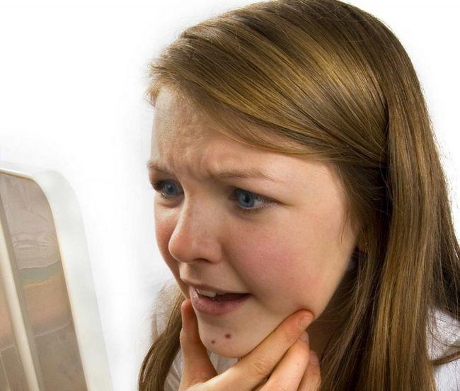 Высыпания (сыпь) на коже при глистах