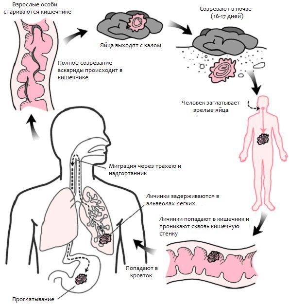 Зараження людськими аскаридами, як заражаються, як можна заразитися аскаридозом?