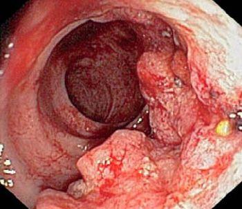 Злокачественный полип в кишечнике