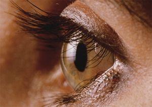 Зрительный нерв — что это такое